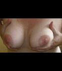 Petal25